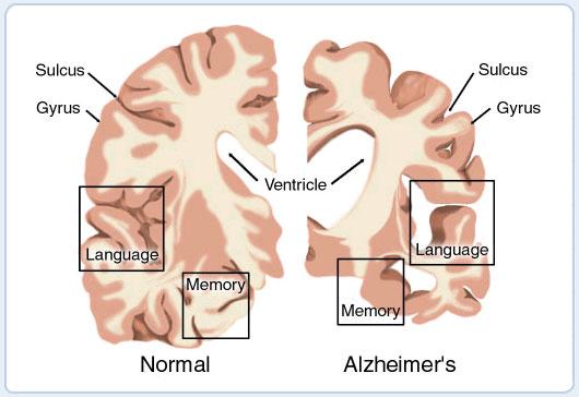 brain_cross_section_border